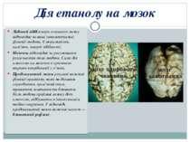 Дія етанолу на мозок Лобовий відділ кори головного мозку відповідає за вищі і...
