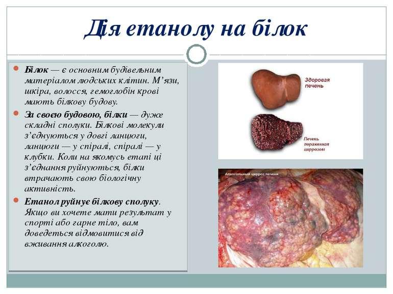 Дія етанолу на білок Білок — є основним будівельним матеріалом людських кліти...
