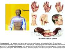 Електротравма — це травма, спричинена дією електричного струму чи електричної...