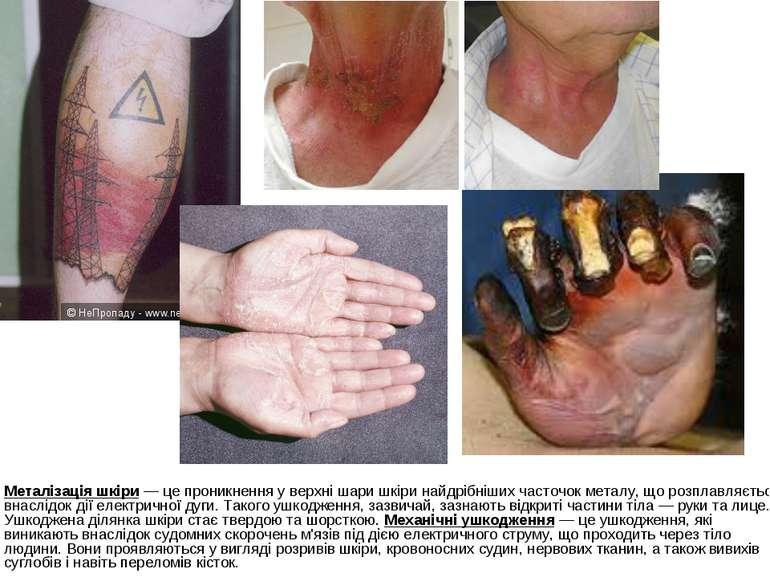 Металізація шкіри — це проникнення у верхні шари шкіри найдрібніших часточок ...