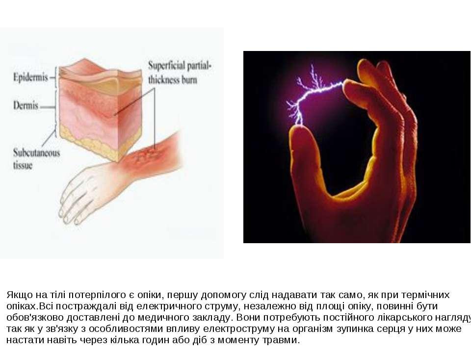 Якщо на тілі потерпілого є опіки, першу допомогу слід надавати так само, як п...