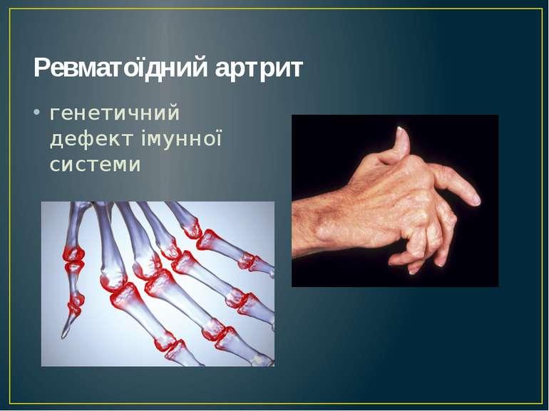 Ревматоїдний артрит генетичний дефект імунної системи