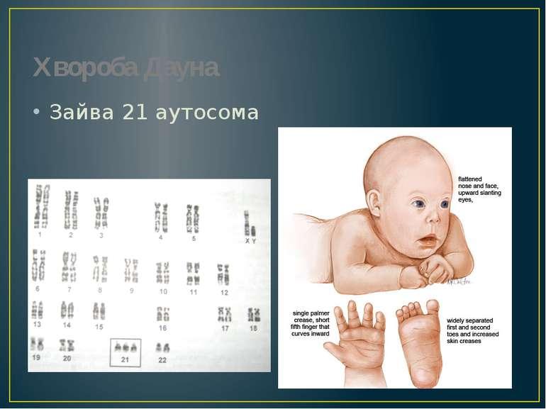 Хвороба Дауна Зайва 21 аутосома Прояви хвороби
