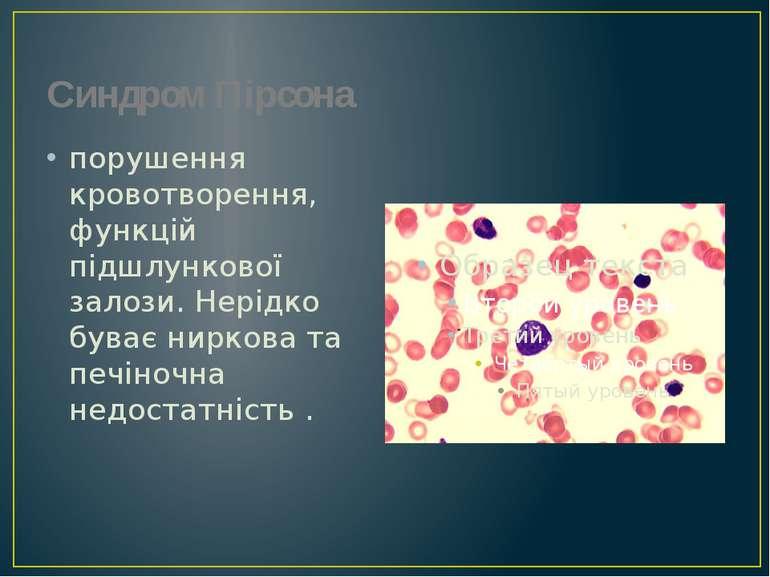Синдром Пірсона порушення кровотворення, функцій підшлункової залози. Нерідко...