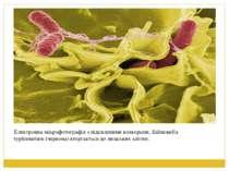 Електронна мікрофотографія з підсиленими кольорами, Salmonella typhimurium (ч...