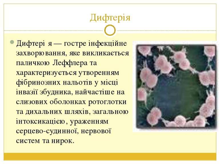 Дифтерія Дифтері я — гостре інфекційне захворювання, яке викликається паличко...