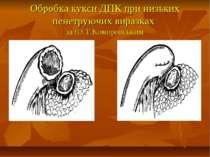 Обробка кукси ДПК при низьких пенетруючих виразках за Ю.Т.Коморовським