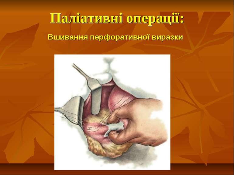 Паліативні операції: Вшивання перфоративної виразки