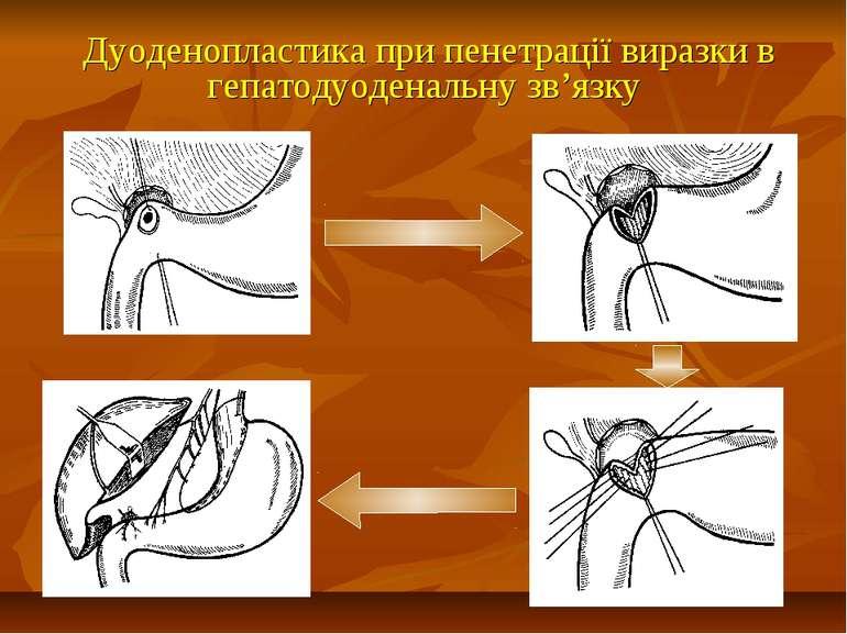 Дуоденопластика при пенетрації виразки в гепатодуоденальну зв'язку