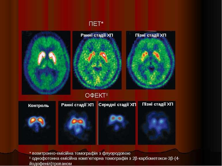 * позитронно-емісійна томографія з флуородопою ‡ однофотонна емісійна комп'ют...