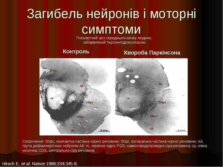 Загибель нейронів і моторні симптоми Скорочення: SNpc, компактна частина чорн...