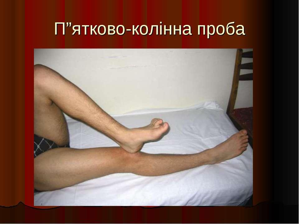 """П""""ятково-колінна проба"""