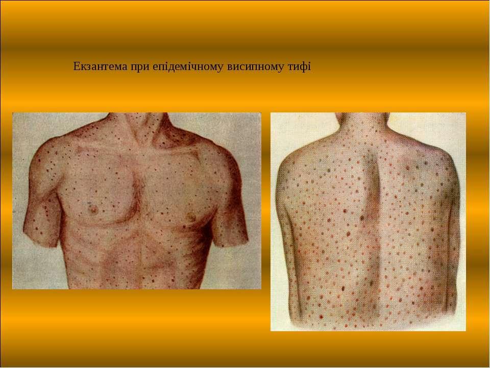 Екзантема при епідемічному висипному тифі