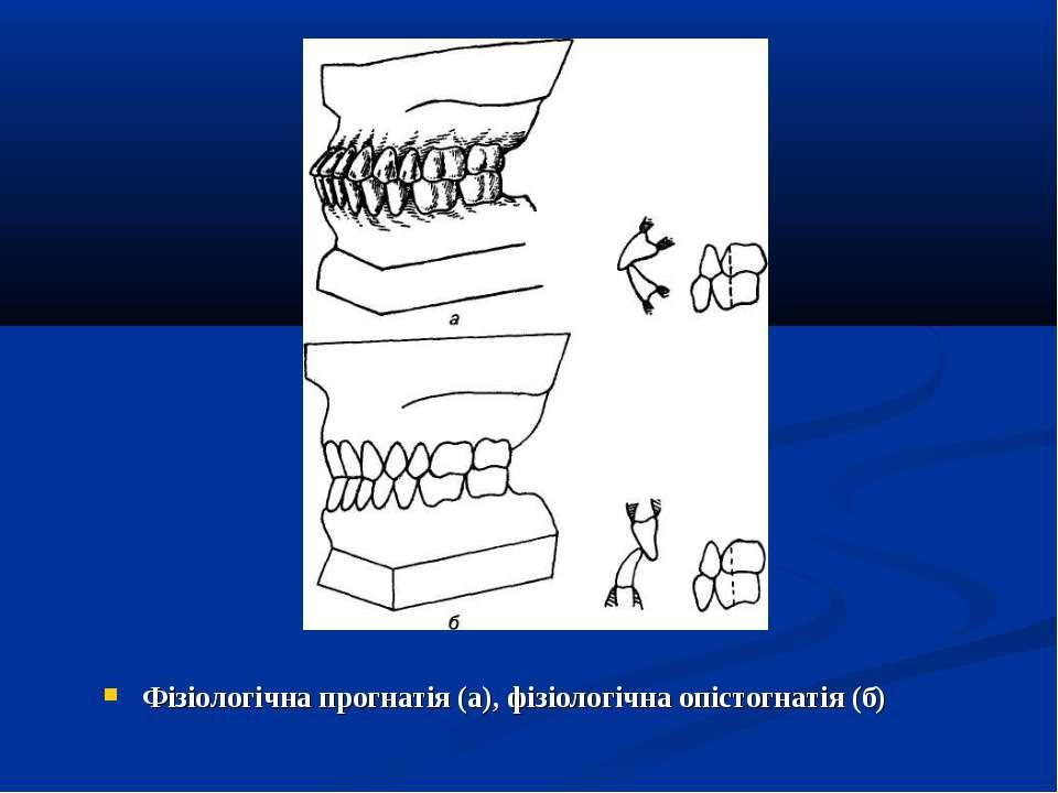 Фізіологічна прогнатія (а), фізіологічна опістогнатія (б)