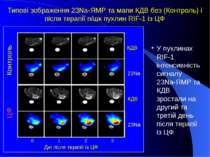 Контроль ЦФ 0 1 2 3 Дні після терапії із ЦФ 23Na КДВ 23Na КДВ У пухлинах RIF-...