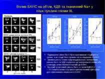 Вплив БХНС на об'єм, КДВ та тканинний Na+ у п/шк пухлині гліоми 9L Вірогідні ...