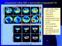 Зображення 23Na-ЯМР в ортотопній та підшкірній ГКК 14 21 28 Дні після інокуля...