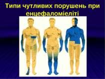 Типи чутливих порушень при енцефаломіеліті