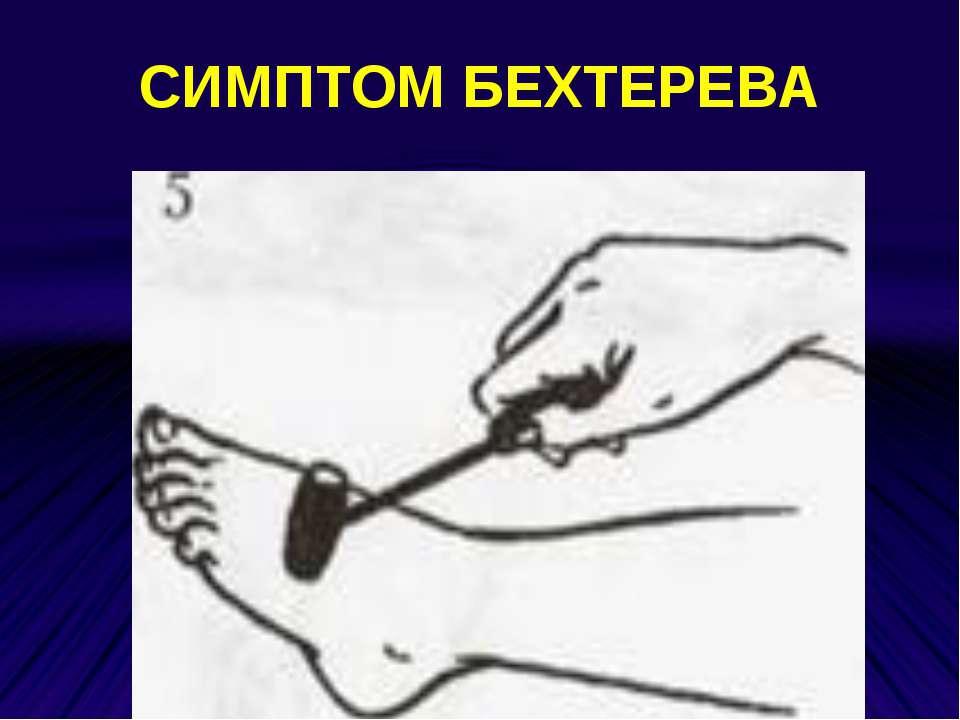 СИМПТОМ БЕХТЕРЕВА
