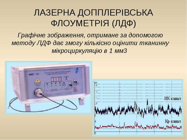 Графічне зображення, отримане за допомогою методу ЛДФ дає змогу кількісно оці...