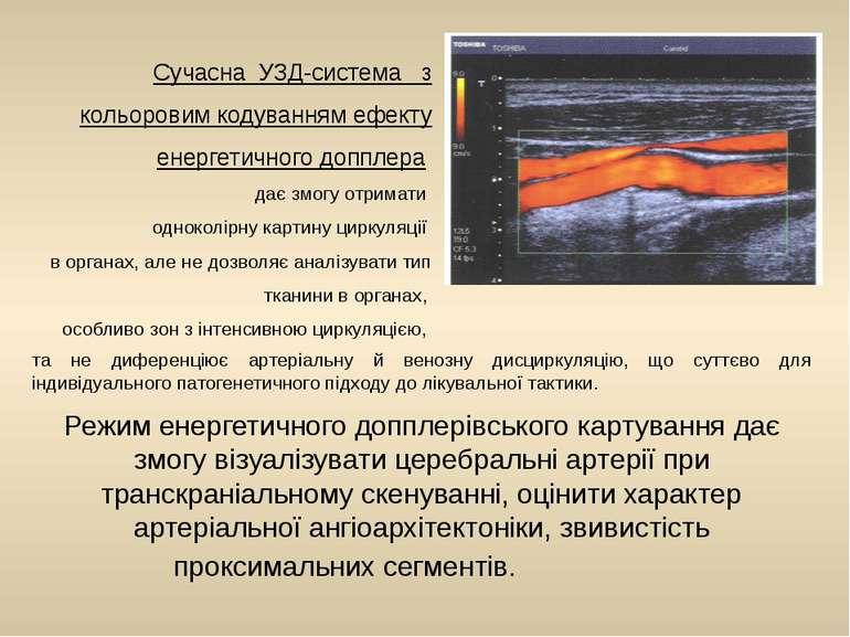 Сучасна УЗД-система з кольоровим кодуванням ефекту енергетичного допплера дає...