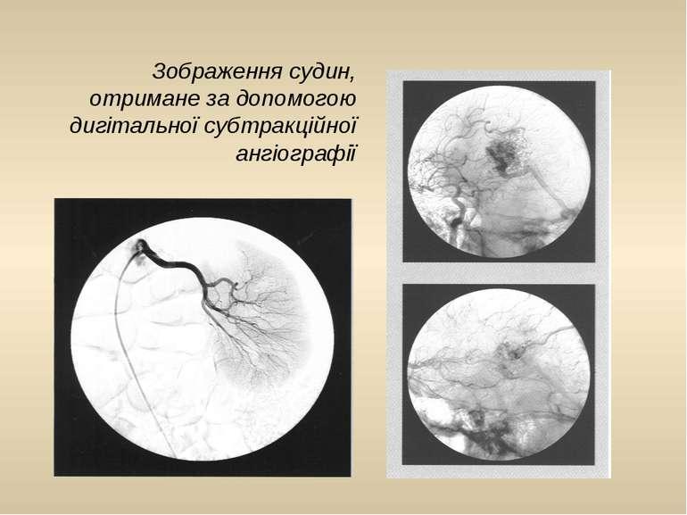 Зображення судин, отримане за допомогою дигітальної субтракційної ангіографії