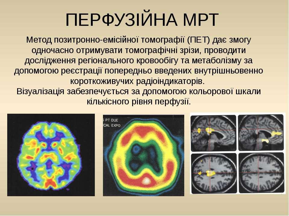 Метод позитронно-емісійної томографії (ПЕТ) дає змогу одночасно отримувати то...
