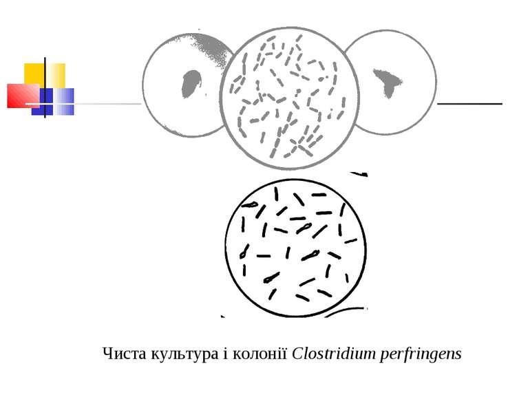 Чиста культура і колонії Clostridium perfringens