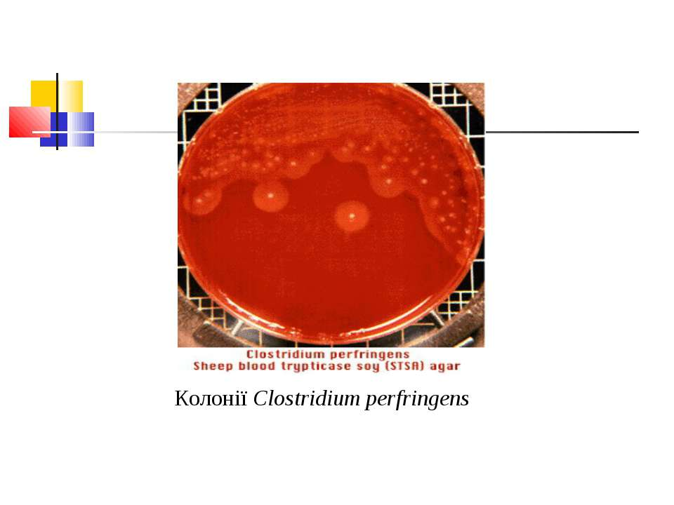 Колонії Clostridium perfringens