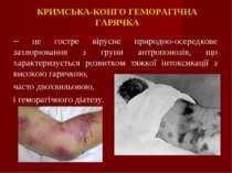 КРИМСЬКА-КОНГО ГЕМОРАГІЧНА ГАРЯЧКА – це гостре вірусне природно-осередкове за...