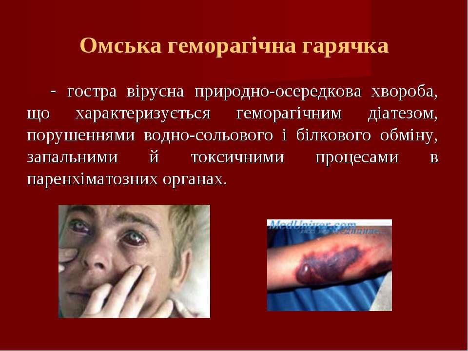Омська геморагічна гарячка - гостра вірусна природно-осередкова хвороба, що х...