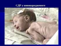 СДР у новонародженого