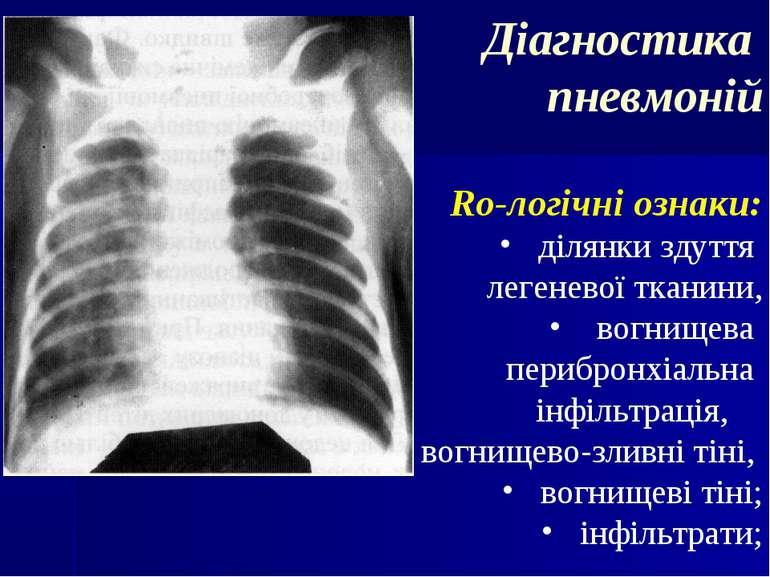 Діагностика пневмоній Ro-логічні ознаки: ділянки здуття легеневої тканини, во...