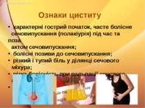 характерні гострий початок, часте болісне сечовипускання (полакіурія) під час...