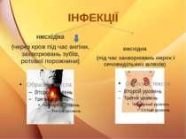 ІНФЕКЦІЇ нисхідна (через кров під час ангіни, захворювань зубів, ротової поро...
