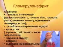Гломерулонефрит Симптоми: загальна інтоксикація (загальна слабкість, головна ...