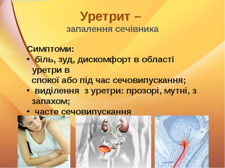 Уретрит – запалення сечівника Симптоми: біль, зуд, дискомфорт в області уретр...