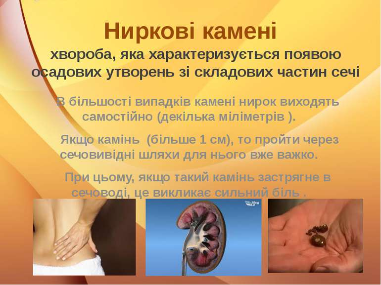 Ниркові камені хвороба, яка характеризується появою осадових утворень зі скла...