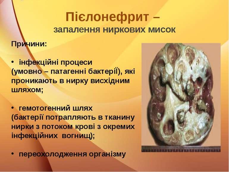Пієлонефрит – запалення ниркових мисок Причини: інфекційні процеси (умовно – ...