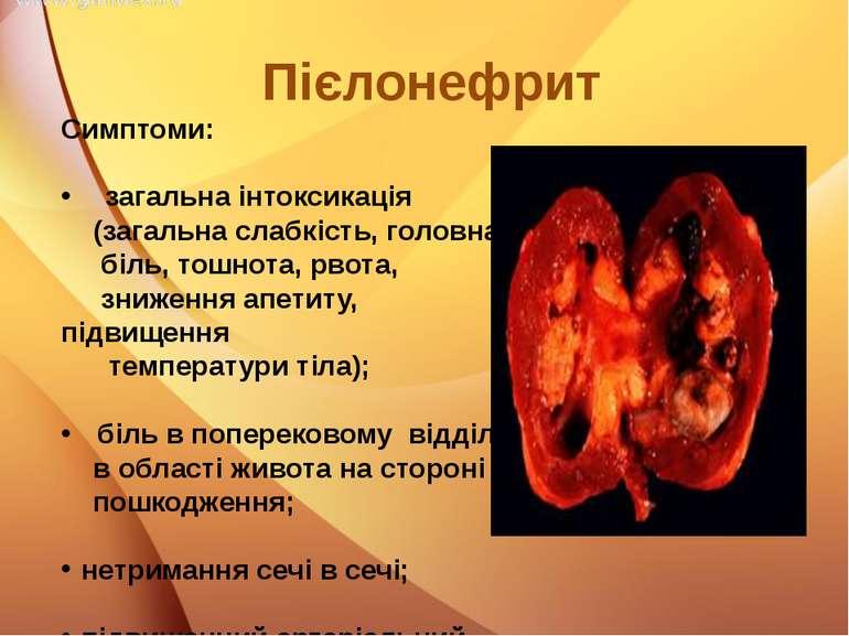 Симптоми: загальна інтоксикація (загальна слабкість, головна біль, тошнота, р...