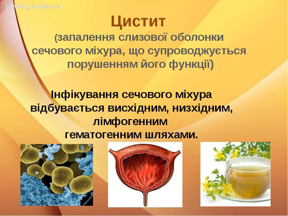 Цистит (запалення слизової оболонки сечового міхура, що супроводжується поруш...