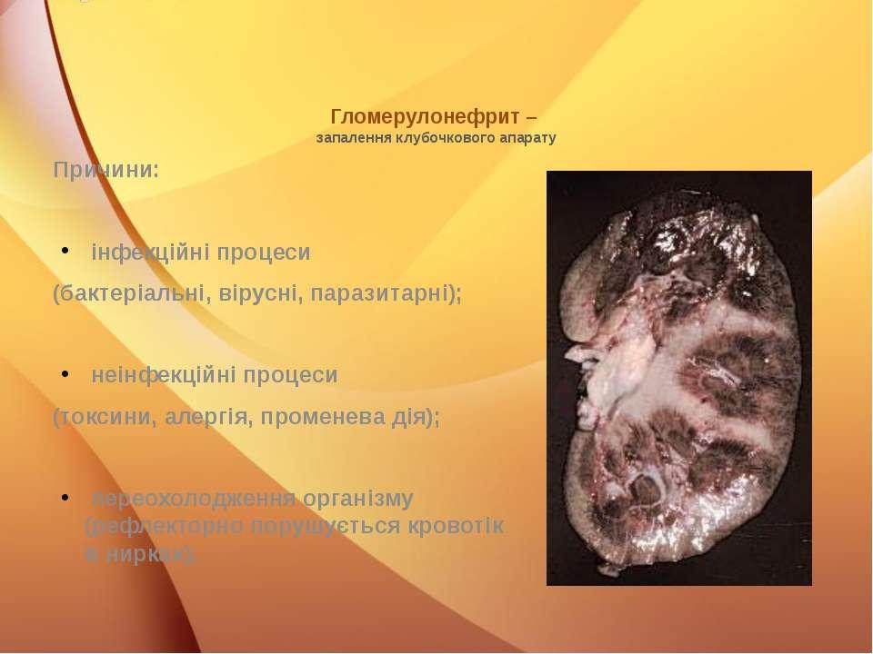 Гломерулонефрит – запалення клубочкового апарату Причини: інфекційні процеси ...