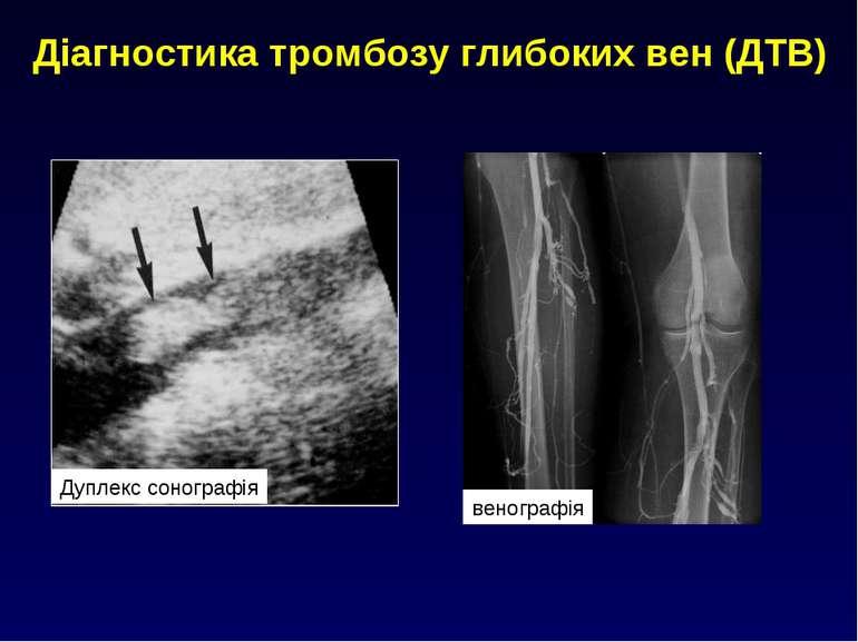 Діагностика тромбозу глибоких вен (ДТВ) Дуплекс сонографія венографія