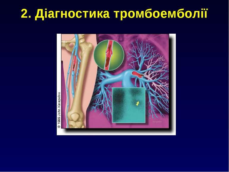 2. Діагностика тромбоемболії