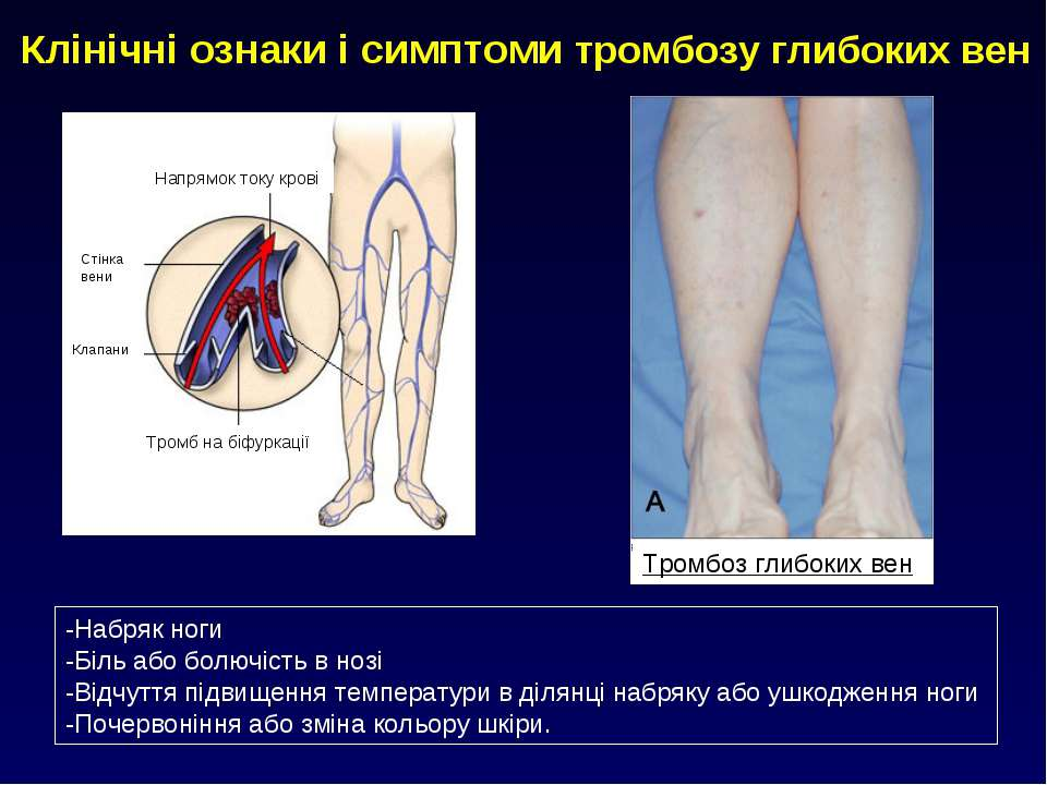Клінічні ознаки і симптоми тромбозу глибоких вен Тромбоз глибоких вен -Набряк...