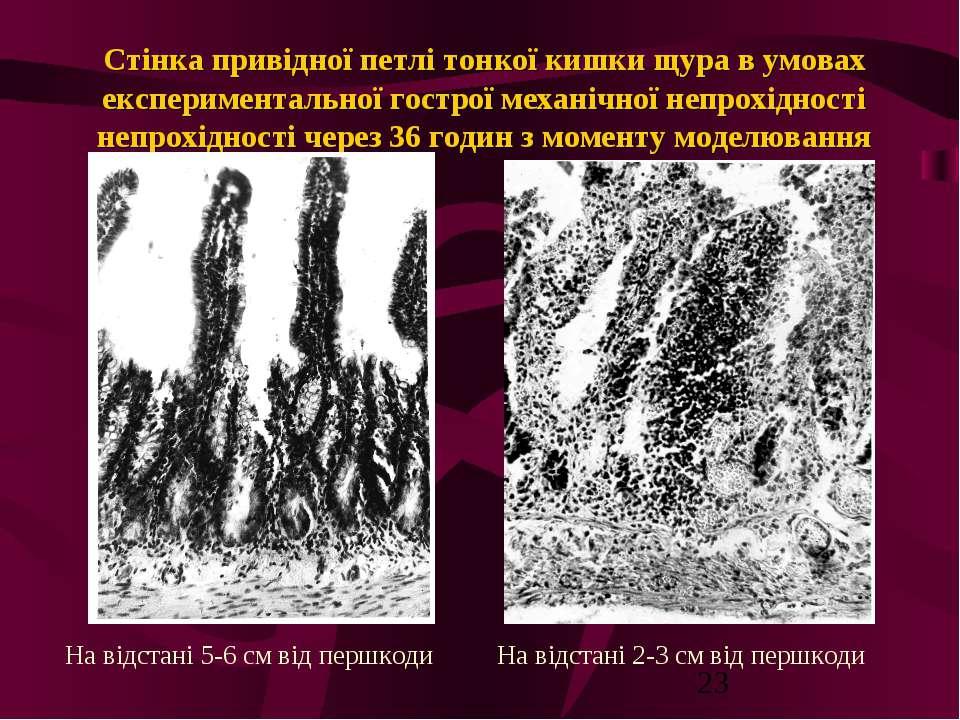Стінка привідної петлі тонкої кишки щура в умовах експериментальної гострої м...