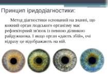 Принцип іридодіагностики: Метод діагностики оснований на знанні, що кожний ор...