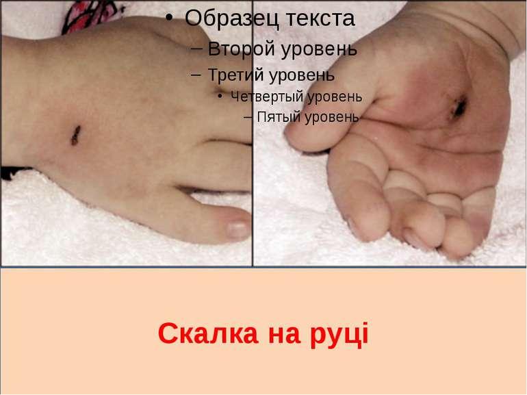 Скалка на руці