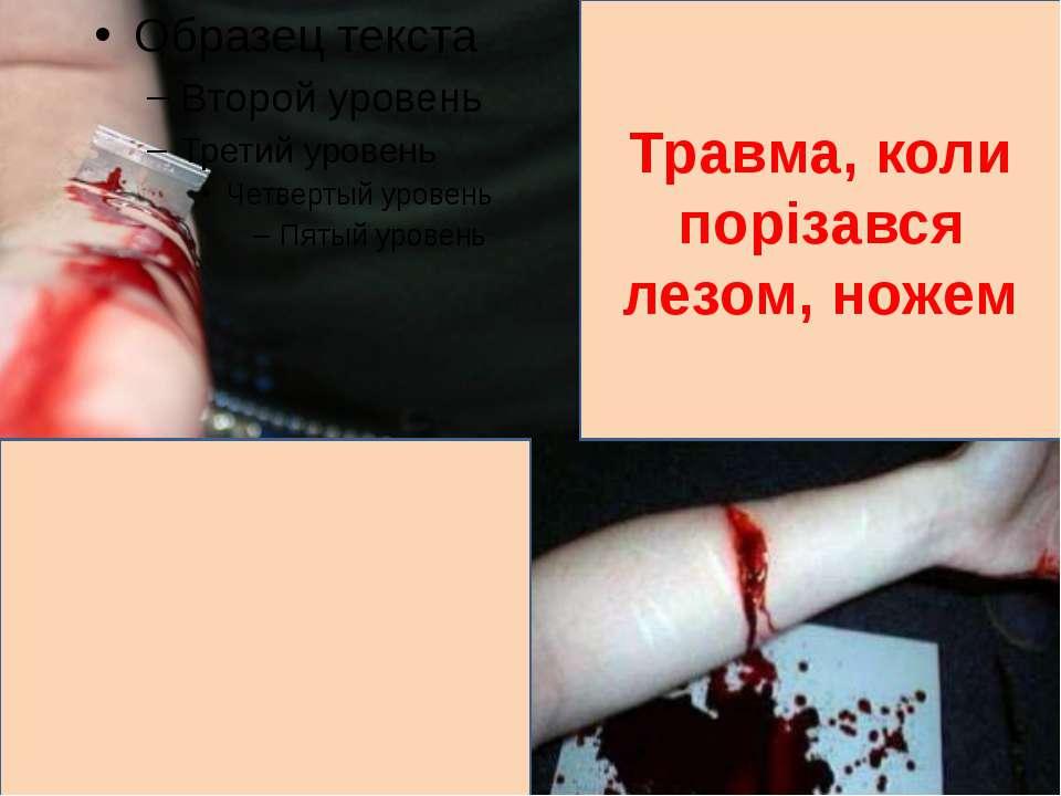 Травма, коли порізався лезом, ножем