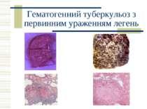 Гематогенний туберкульоз з первинним ураженням легень